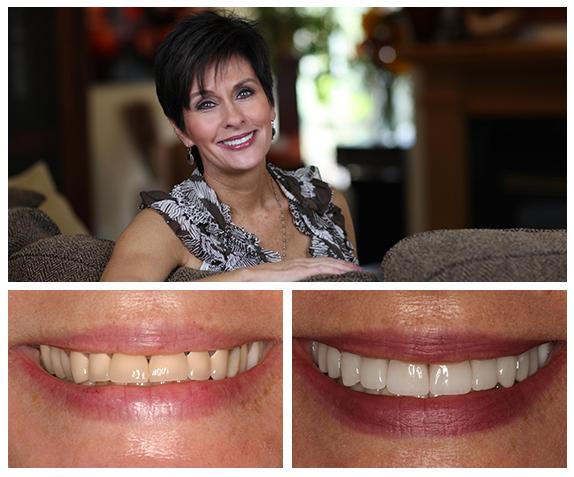 Minneapolis dentist Heidi's story