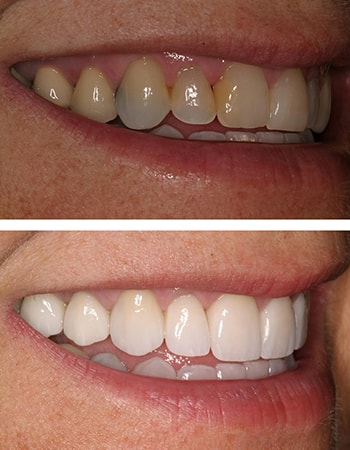 A Before and after photo of all ceramic crowns.