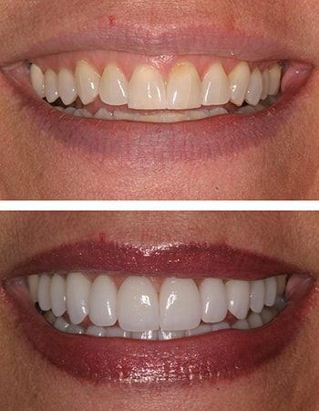 Before and after of a full mouth rehabilitation case