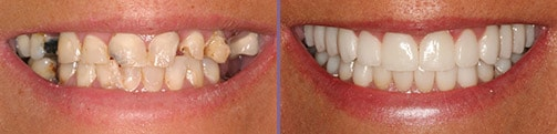 Before and After from a Give Back a Smile completed by Dr. Gorman