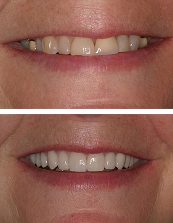 A close-up of before and after smile design case by Dr. Steve Gorman