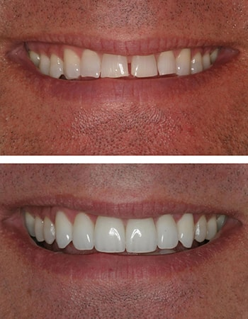 An actual before and after porcelain veneers case, crafted and designed by Dr. Steve Gorman
