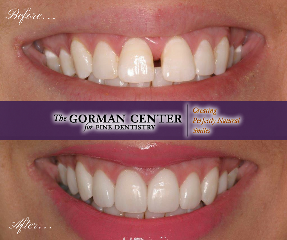 Cosmetic dentistry can help you have a smile you will love.