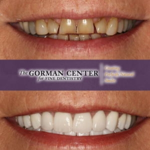 Before and after photos of Phyllis' new smile from The Gorman Center.