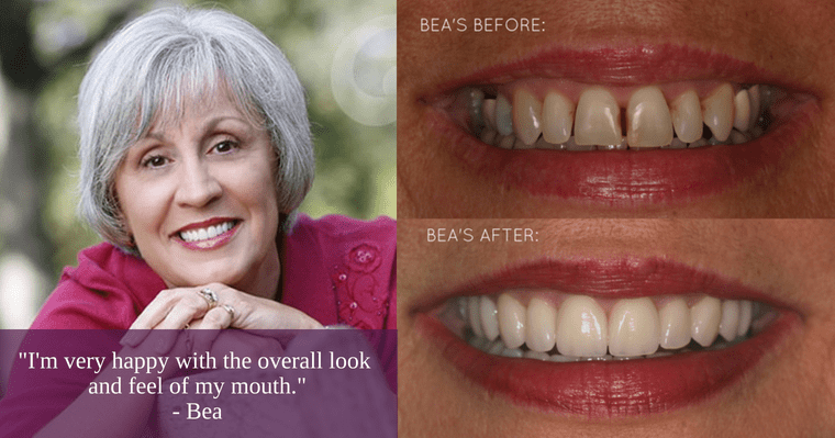 Bea's before and after photos and testimonial after improving her oral health