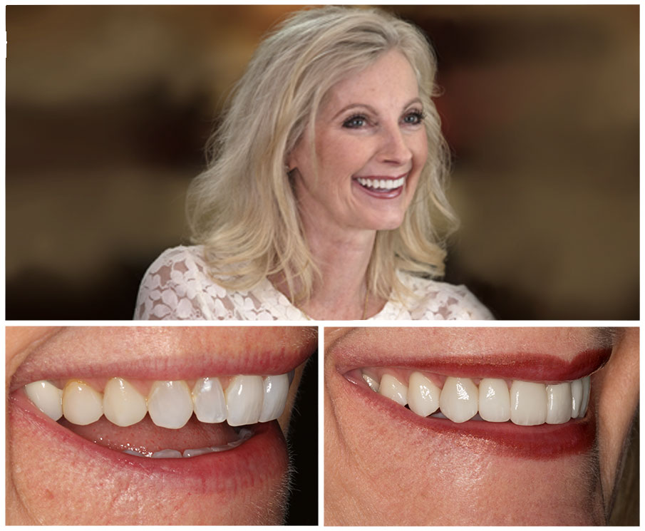 Pam M.'s smile, crafted by Dr. Gorman