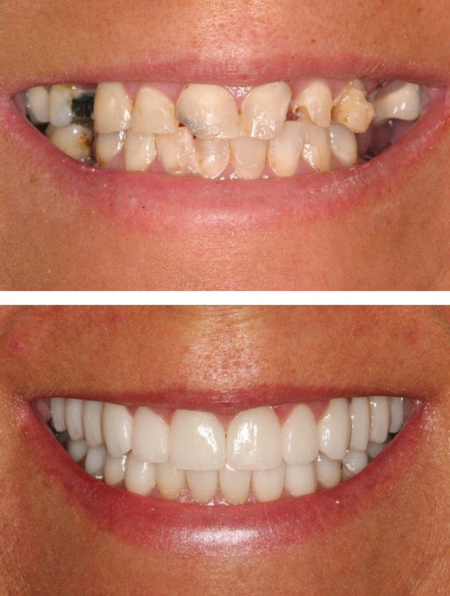 Before and after images of a full-mouth rehab case using dental implants