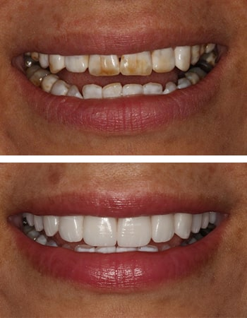 Smile design before and after by Dr. Steve Gorman