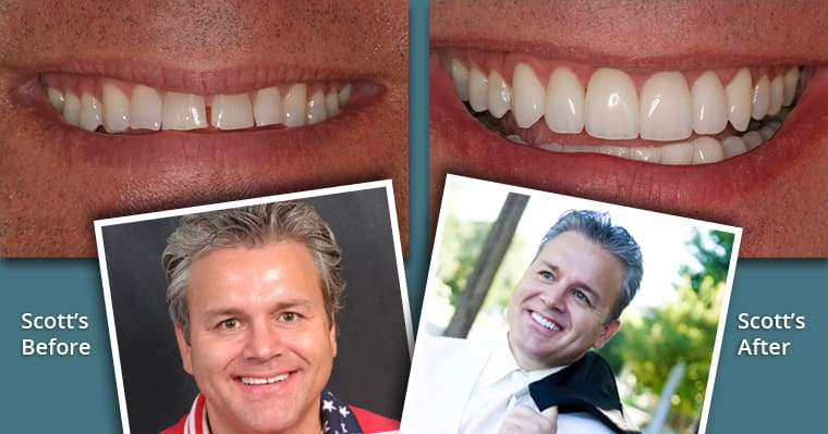 Scott's before and after porcelain veneer photos