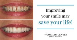 """Before and after smile results with text """"Improving your smile may save your life"""""""