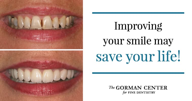 "Before and after smile results with text ""Improving your smile may save your life"""