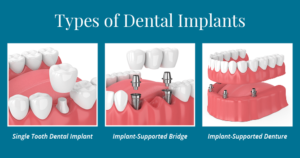 The types of dental implants; a single tooth implant, an implant-supported bridge, and a implant-supported denture.