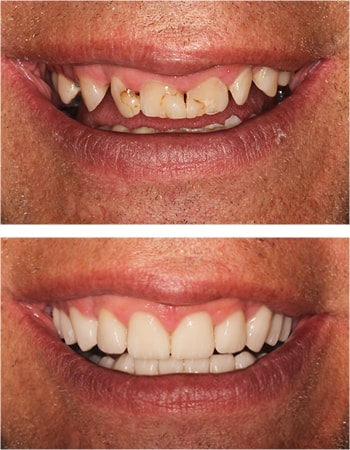 A close-up of a before and after smile design case by Dr. Steve Gorman