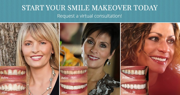 Three female patients showing off their before and after smile makeover results