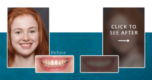 """Before & after photos of Abby's natural-looking veneers with the after result blurred and text, """"Click to see after"""""""
