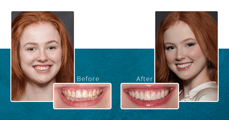 Before & after photos of Abby's natural-looking veneers
