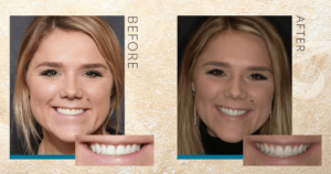 Cadyn's smile before with dental bonding and after with porcelain veneers