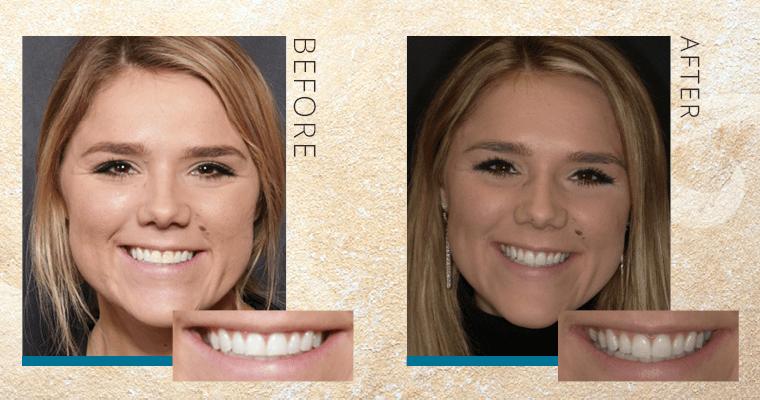 Why Cadyn Upgraded from Dental Bonding to Veneers [VIDEO]