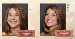 Wider smile before-and-after result