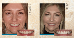 Taylor Before and After Bonding and Veneers
