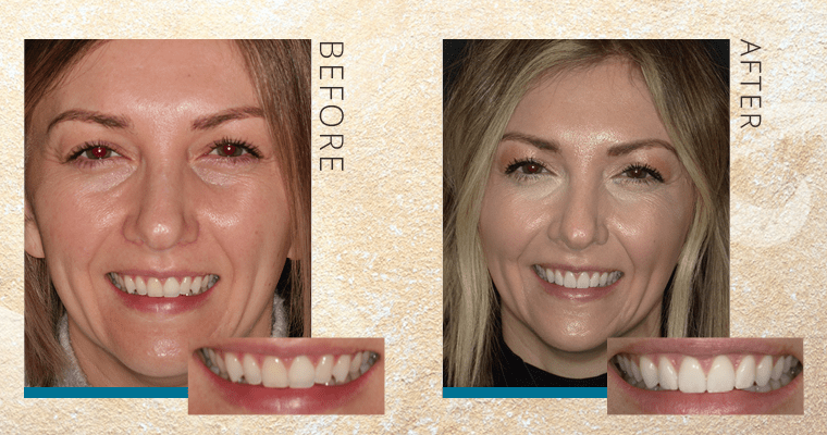 How Taylor Fixed Her Discolored Front Tooth [VIDEO]