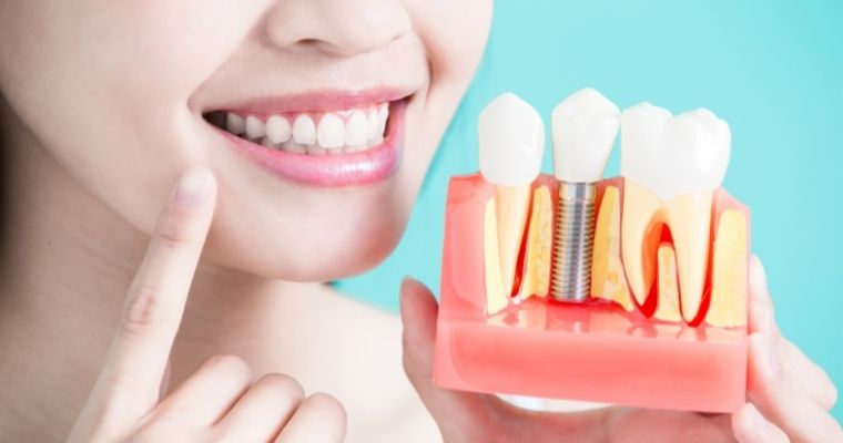 What You Should Know About Dental Implants [VIDEO]